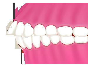 軽度の出っ歯は部分矯正で直りますが、重度の場合は全体矯正が必要になります。