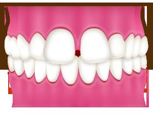 大阪ですきっ歯の部分矯正を行なっています