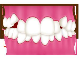 大阪のHANA Intelligence 歯科•矯正歯科では、叢生は部分矯正で治せる可能性があります。