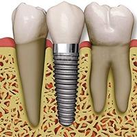 「デジタルインプラント」で安全・精密に処置を行う淀屋橋のHANA Intelligence 歯科•矯正歯科