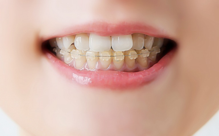 前歯など気になる部分の歯並びだけを改善する方法です