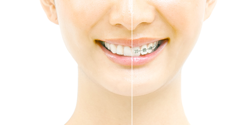 全顎矯正~部分的な矯正まで、あなたに合った矯正治療が可能