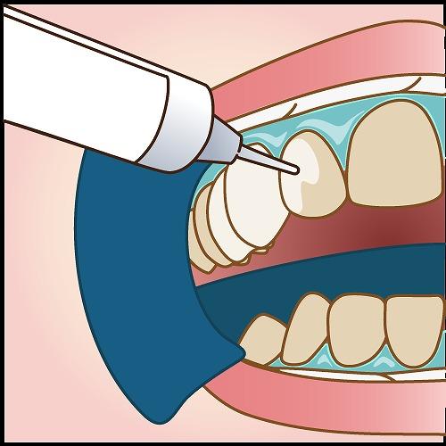 年齢と共に目立つ歯の黄ばみ・変色が気になりませんか?
